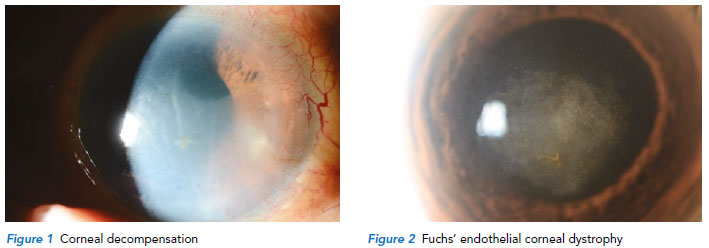 Diseases of the corneal endothelium - Singapore National Eye Centre