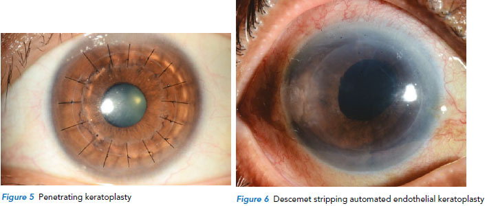Keratoplasty procedure at Singapore National Eye Centre