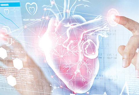 Cardiac Resynchronisation Therapy