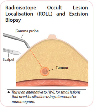 Breast Cancer Diagnosis: Imaging and Biopsy   SingHealth